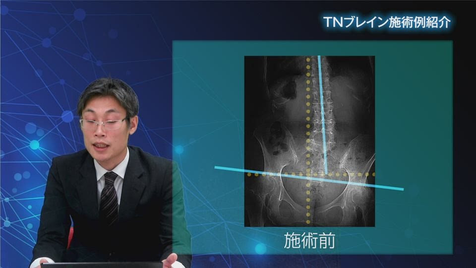 施術事例紹介「股関節に疼痛があり歩行困難」