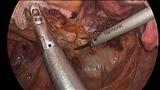 Web手術見学第11弾!腹腔鏡下前方切除術(04:間膜処理 腸管洗浄 切離)
