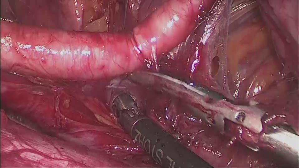 左外腸骨リンパ節摘出