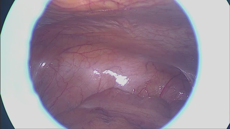 腹腔鏡下観察と腹腔内洗浄液採取