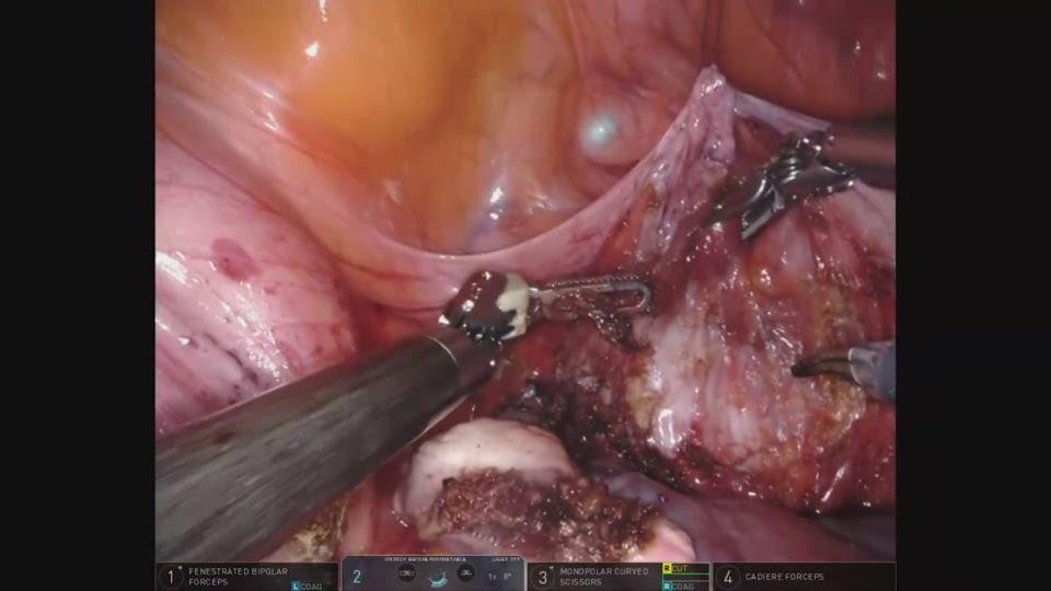 子宮頸部及び腟前壁からの膀胱の剥離